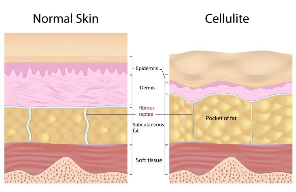 Cellulit kontra skóra bez cellulitu