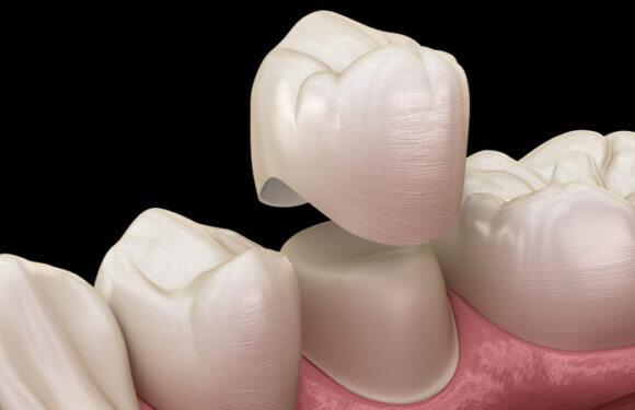Korony na zęba – czy to boli?